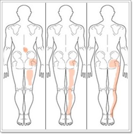 坐骨神経痛の症状の出る部位